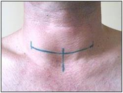 Операція на щитовидній залозі