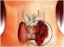 Рак щитовидної залози у жінок, причини і симптоми. Вагітність при карциномі