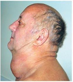 пухлина щитовидки