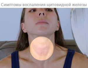 Щитовидна залоза у вигляді метелика