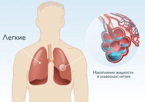 набряк легенів