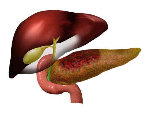Симптоми і лікування алкогольного панкреатиту