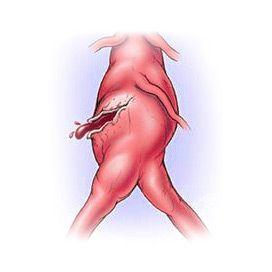 Розрив аорти: причини, симптоми, як уникнути смерті, операція, прогноз