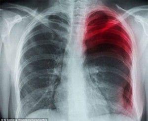 розрив легені