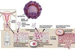 Схема вірусу папіломи людини на шийці матки