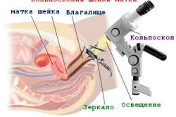 Кальпоскопія шийки матки при ВПЛ