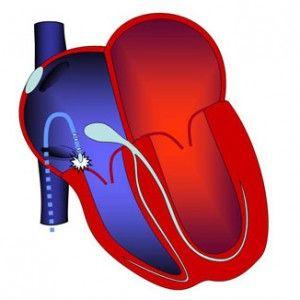 Рч-абляція серця: особливості, підготовка, процедура, відновлення після