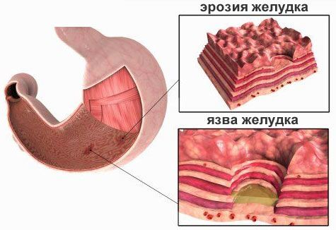 Сучасні методи лікування ерозії шлунка