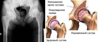 Лікування ревматоїдного артриту народними засобами
