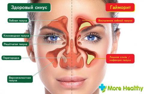 препарати від гаймориту