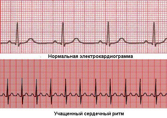 Серцебиття: підвищений і нормальний, причини почастішання, як і що лікувати?