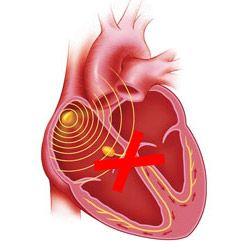 Серцева блокада: повна і часткова, різних локалізацій - причини, ознаки, лікування