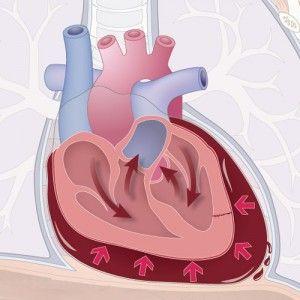 Серцева тампонада: ознаки, перебіг, діагностика, перша допомога, лікування