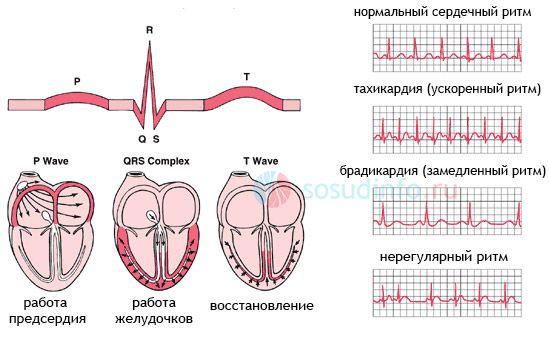Аритмії - порушення серцевого ритму на кардіограмі (ЕКГ)