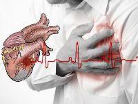 Серцевий напад і перша допомога при ньому