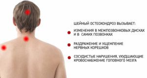 Шийний остеохондроз: лікувальна гімнастика