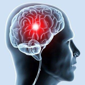 Шунтування судин голови: як усувають порушення мозкового кровотоку?