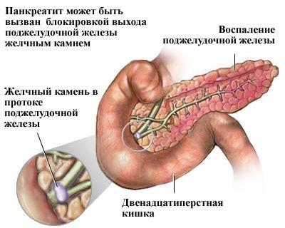 Панкреатит - запалення підшлункової