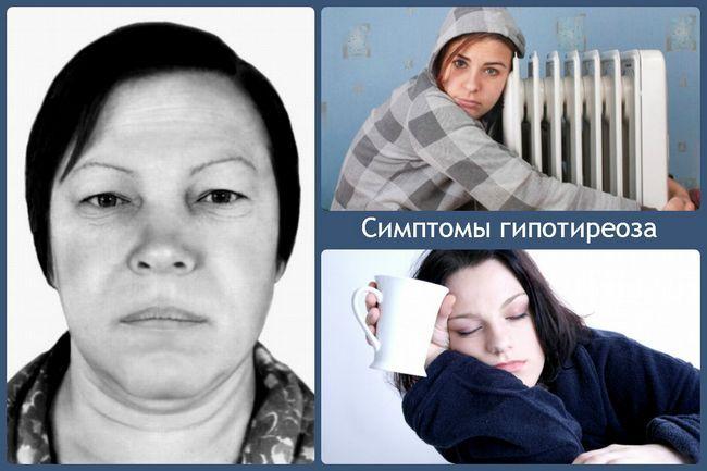 симптоми гіпотиреозу