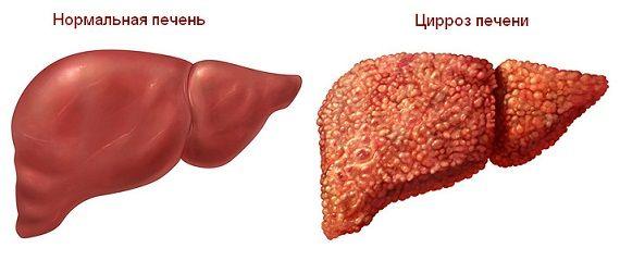 Нормальна печінку і печінку з цирозом