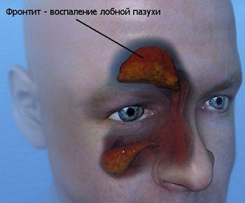 Симптоми фронтита і основні методи лікування
