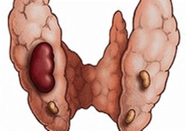 Аденома щитовидної залози