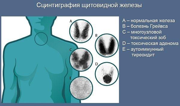 сцинтиграфія щитовидної залози
