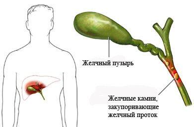 Різновиди і лікування гострого холециститу