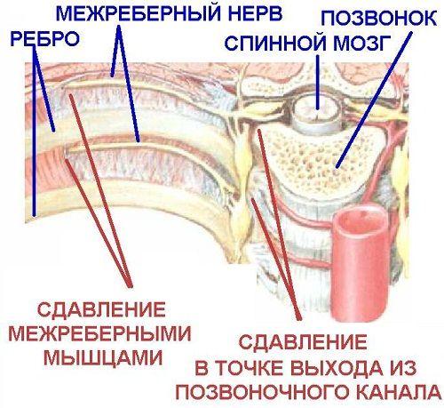 Симптоми і лікування міжреберної невралгії