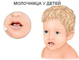 Симптоми і лікування молочниці у дітей