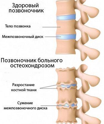 Симптоми і лікування остеохондрозу