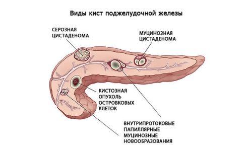 Симптоми і лікування поліпа в підшлунковій залозі