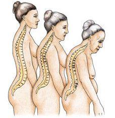 Остеопороз пов`язаний з віком