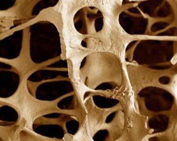 остеопороз кісток