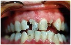 руйнування зубів