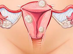 Симптоми міоми матки в залежності від розташування