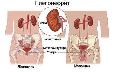Що таке пієлонефрит