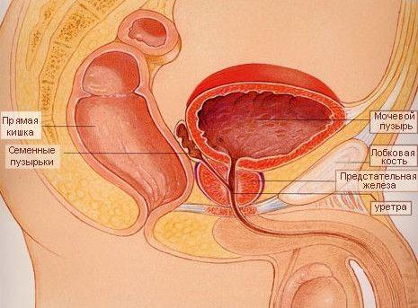 Симптоми гострого та хронічного простатиту