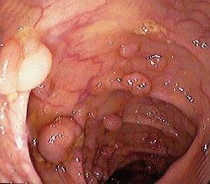 поліпи кишечника
