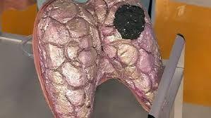 Симптоми раку щитовидної залози