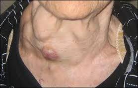 збільшена щитоподібна залоза