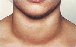 запалення щитовидки