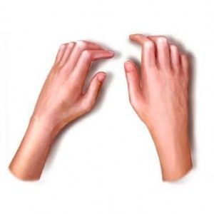 Склеродермия: причини, ознаки, форми, діагностика, лікування