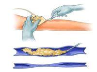 Склеротерапія вен нижніх кінцівок