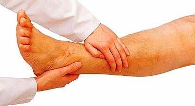 нога пацієнта