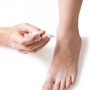 Склеротерапія вен ніг: ефективний метод для незапущених варикозу