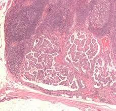 злоякісна пухлина щитовидки