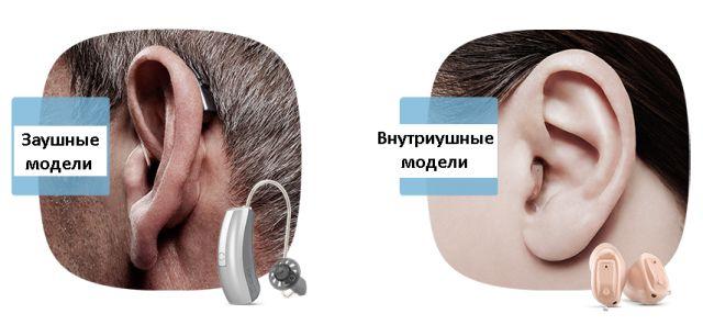 Асортимент слухових пристроїв
