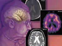 Судинна форма деменції