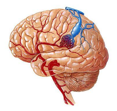 Судинні мальформації мозку: види, симптоми, діагностика, лікування